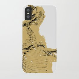 dissappearing act iPhone Case
