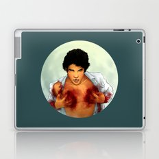 Teen Wolf Laptop & iPad Skin