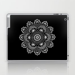 No. 7797 Doily Laptop & iPad Skin