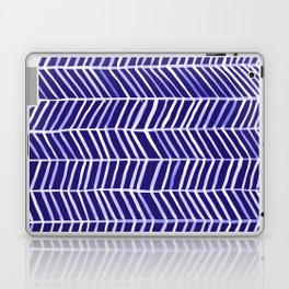 Herringbone – Navy & White Laptop & iPad Skin
