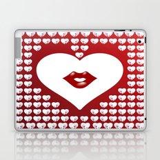 Loving Hearts and Lips Laptop & iPad Skin