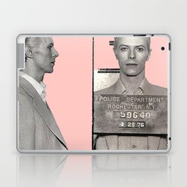PINKY BOWIE ARRESTED Laptop & iPad Skin