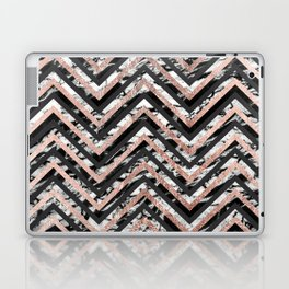 Black and White Marble and Rose Gold Chevron Zigzag Laptop & iPad Skin