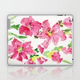 Glad In  Pink Laptop & iPad Skin