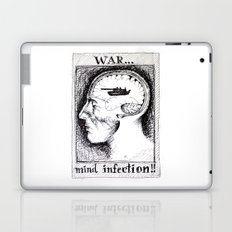 War is a Mind Infection Laptop & iPad Skin