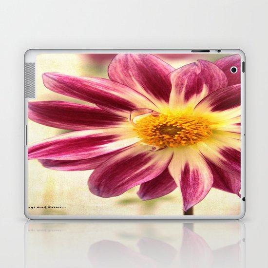 hugs and kisses Laptop & iPad Skin