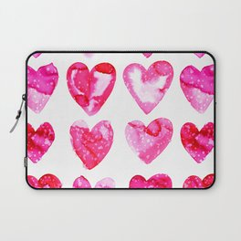 Heart Speckle Laptop Sleeve