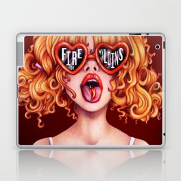 Fire of my Loins Laptop & iPad Skin