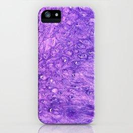 Elastic Cartilage 100x zoom iPhone Case