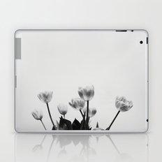 Black & White Tulips Laptop & iPad Skin