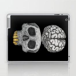 Losing my mind (black background) Laptop & iPad Skin