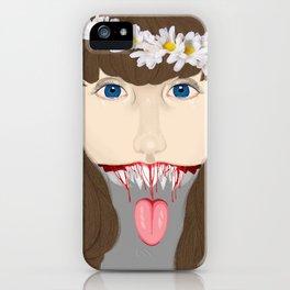 Speak Up iPhone Case
