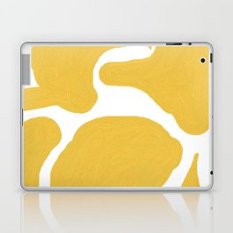 The Dance Laptop & iPad Skin