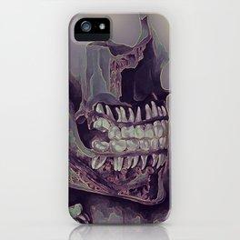 Teeth iPhone Case