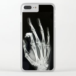 Everything is A-OK Clear iPhone Case