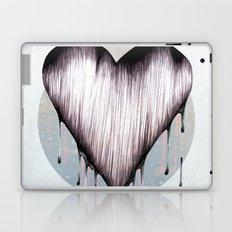 Love 2 Laptop & iPad Skin