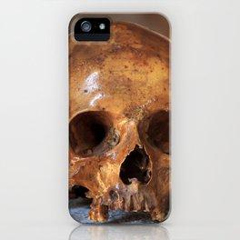 Amletic iPhone Case