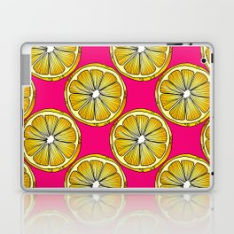 Lemon Slices Repeating Pattern on Pink Laptop & iPad Skin