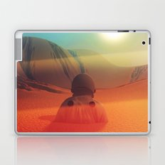 Sundazed Laptop & iPad Skin