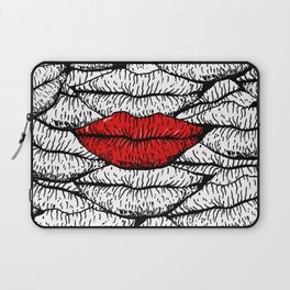 A Bunch of Kisses Laptop Sleeve