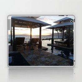 Take a Rest Laptop & iPad Skin