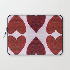 Hearts Laptop Sleeve