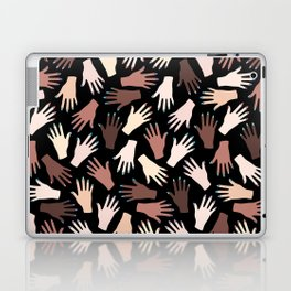 Nail Expert Studio - Colorful Manicured Hands Pattern on Black Background Laptop & iPad Skin