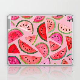Pink Watermelon Laptop & iPad Skin