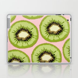 Kiwi Pattern Laptop & iPad Skin