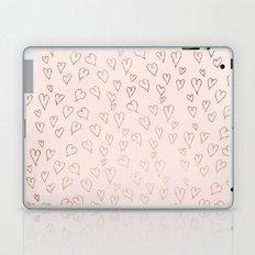 Modern rose gold pastel pink love hearts Valentine's handdrawn pattern Laptop & iPad Skin