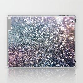Glitter Sparkles Laptop & iPad Skin
