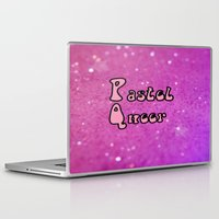 pastel goth Laptop & iPad Skins featuring Pastel Queer by Paris Noonan