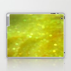 Sunny Sparkle Laptop & iPad Skin