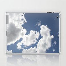 Touched by the Sun Laptop & iPad Skin