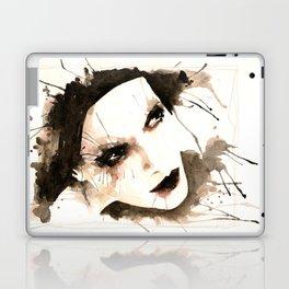 Too much exposure Laptop & iPad Skin