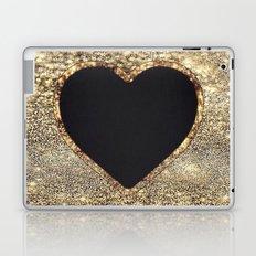 Gold Heart-117 Laptop & iPad Skin
