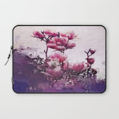 A lover's touch Laptop Sleeve
