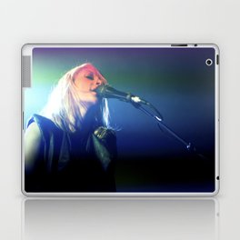 Metric Laptop & iPad Skin