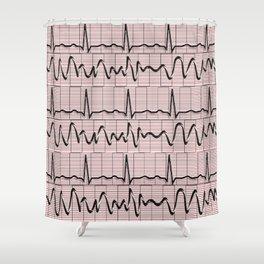 Cardiac Rhythm Strips EKG Shower Curtain