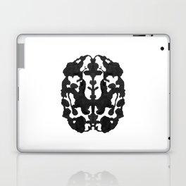 My Brain Hurts Laptop & iPad Skin