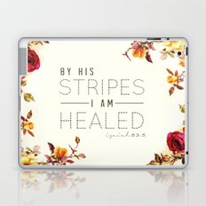 Isaiah 53:5 Laptop & iPad Skin